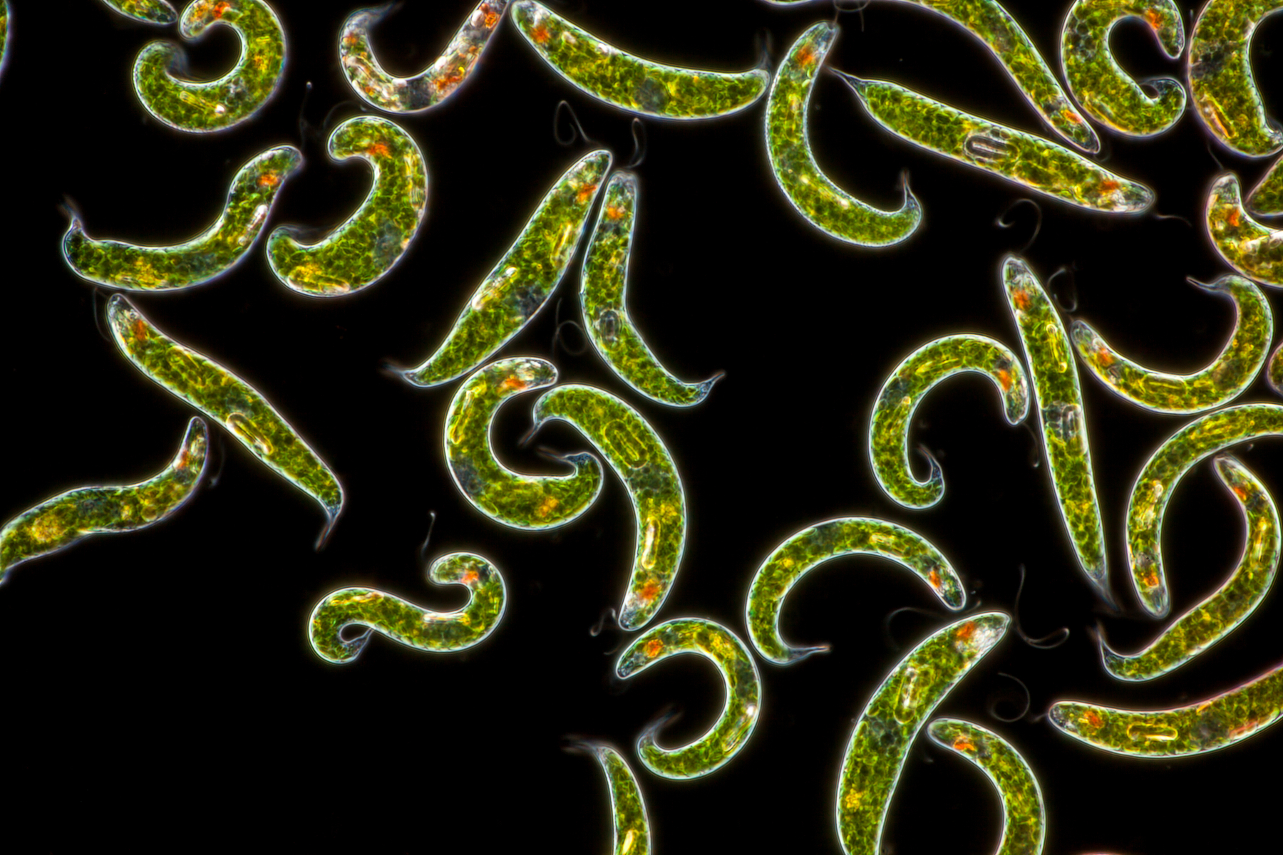 Image of bright green single-celled organisms on a black background, arranged randomly