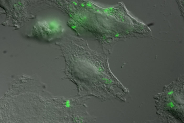 epithelial cells from a cultured human intestinal cell line (not an organoid) infected with Salmonella (green dots)