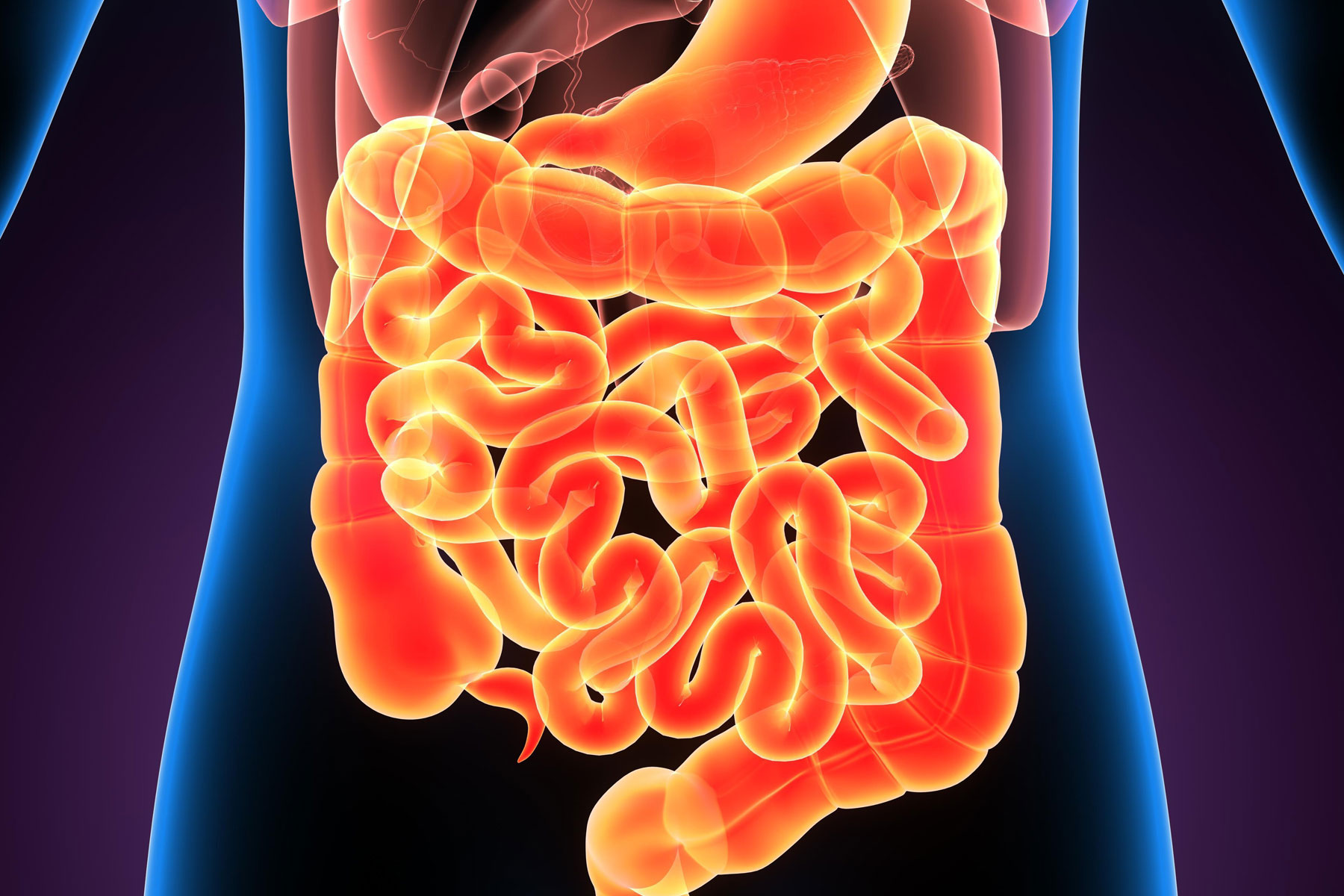 Multi-omics analysis of Inflammatory Bowel Disease patients
